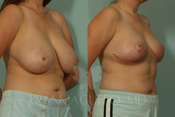Breast Reduction Before and After 7