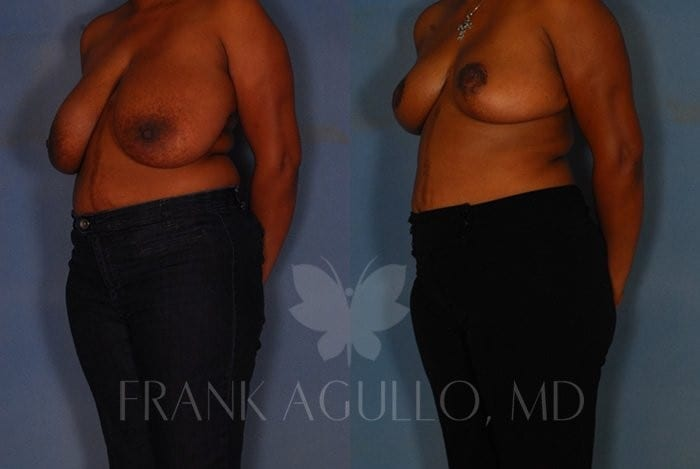 Breast Reduction Before and After 8