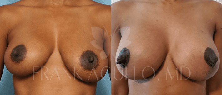 Breast Revision Before and After 9