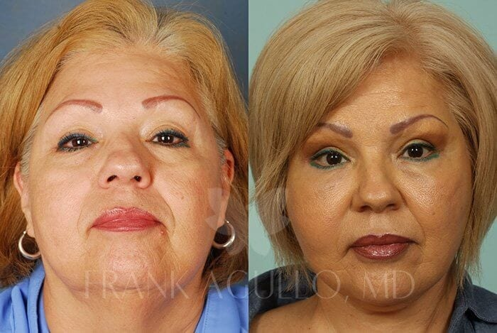 Face Lift Before and After 13