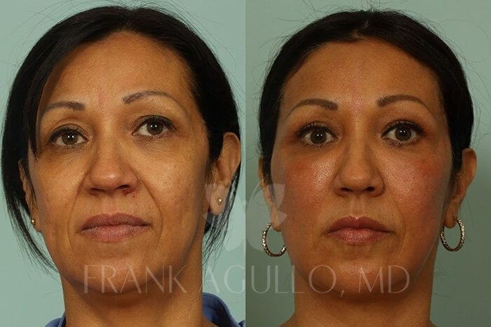 Face Lift Before and After 15
