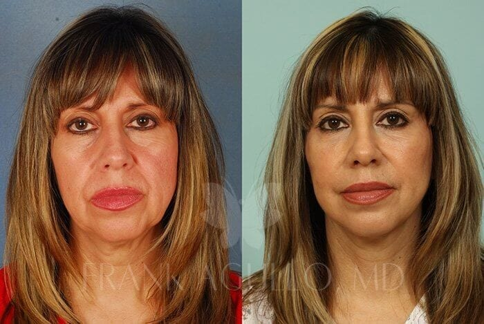 Face Lift Before and After 18