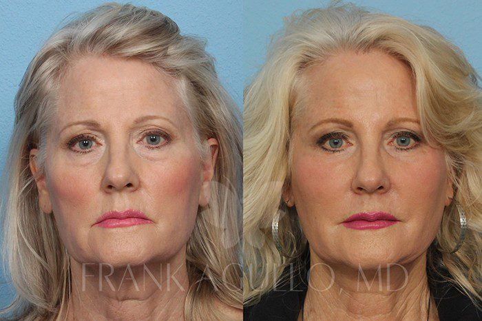 Face Lift Before and After 20