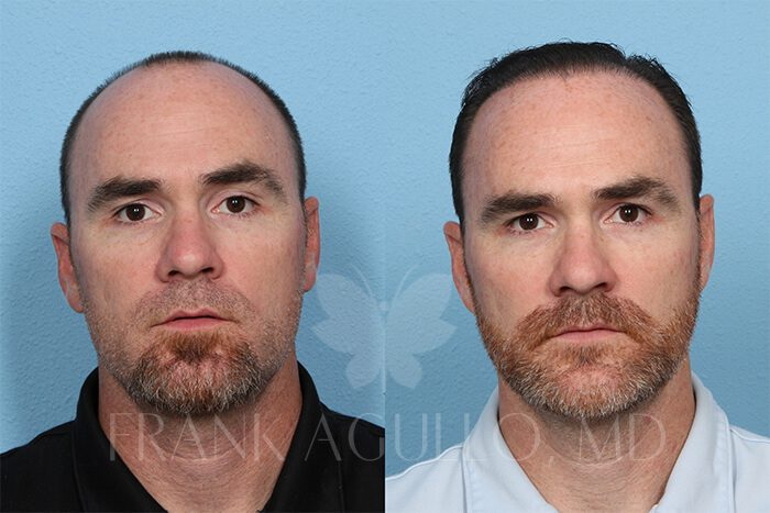 Hair Transplant Before and After 13