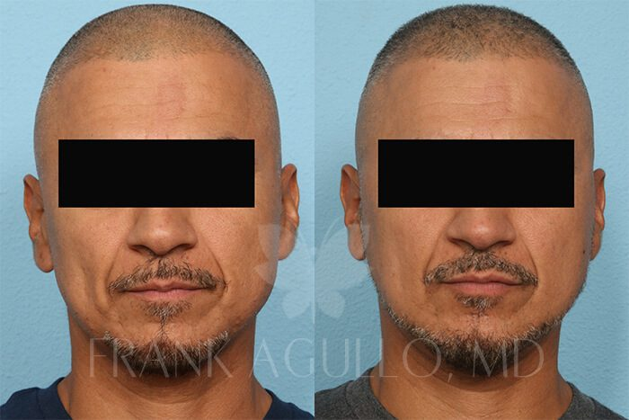 Hair Transplant Before and After 14