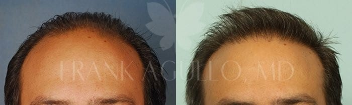 Hair Transplant Before and After 1