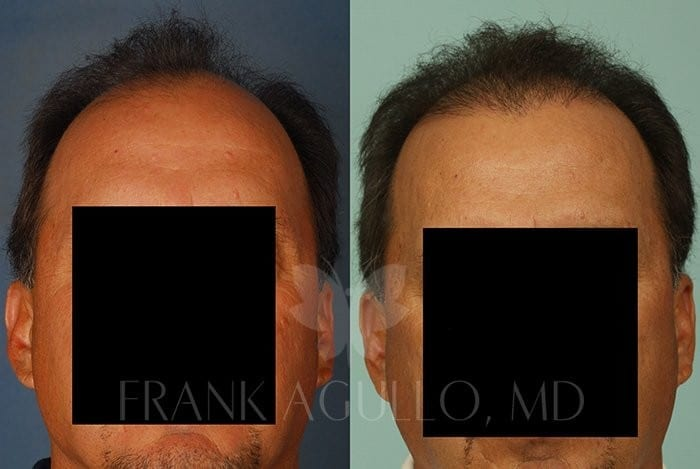 Hair Transplant Before and After 6