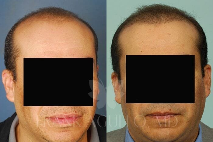 Hair Transplant Before and After 8