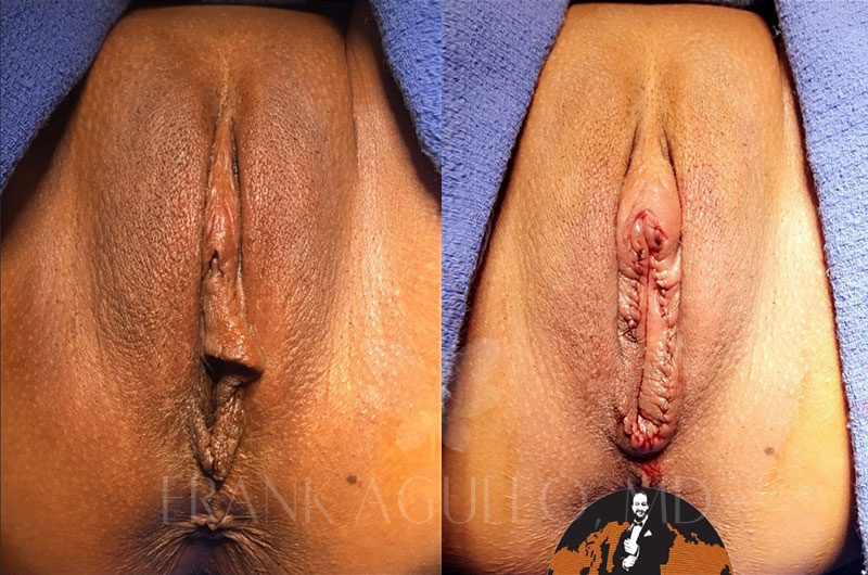 Labiaplasty Before and After 5