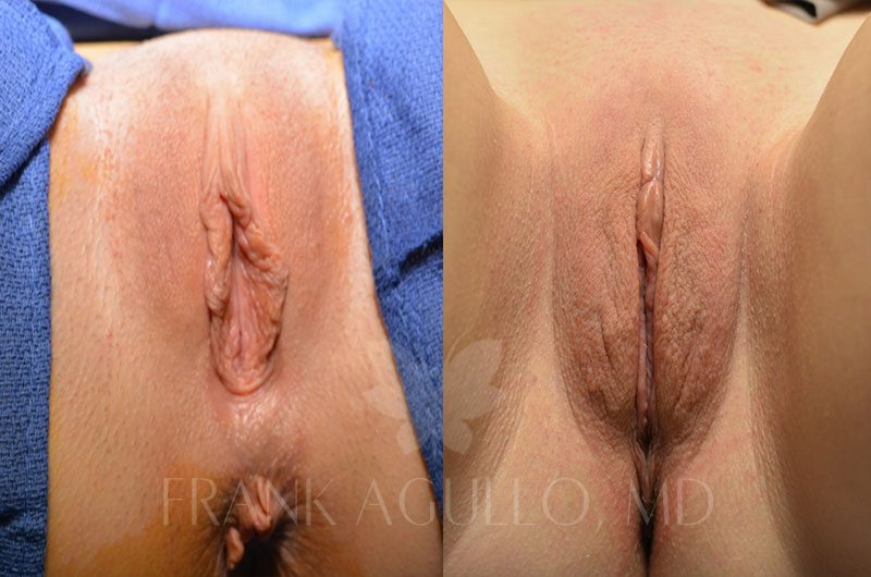 Labiaplasty Before and After 8