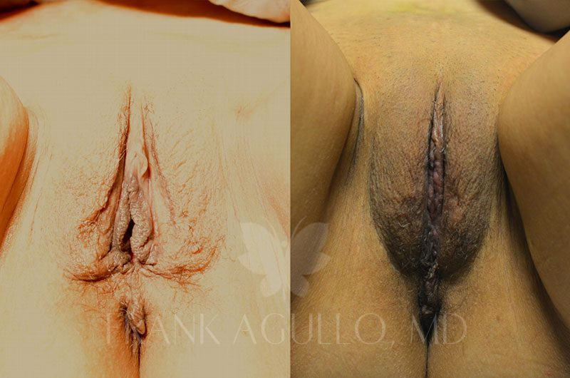 Labiaplasty Before and After 9