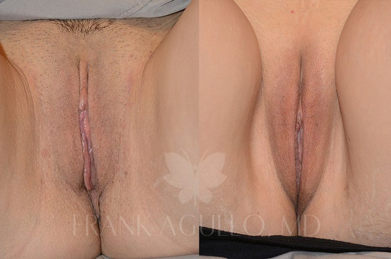 Labiaplasty Before and After 10