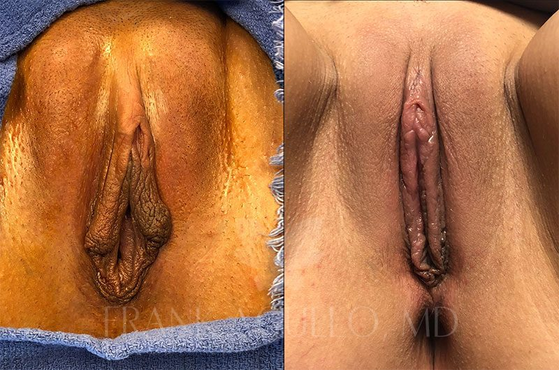 Labiaplasty Before and After 12
