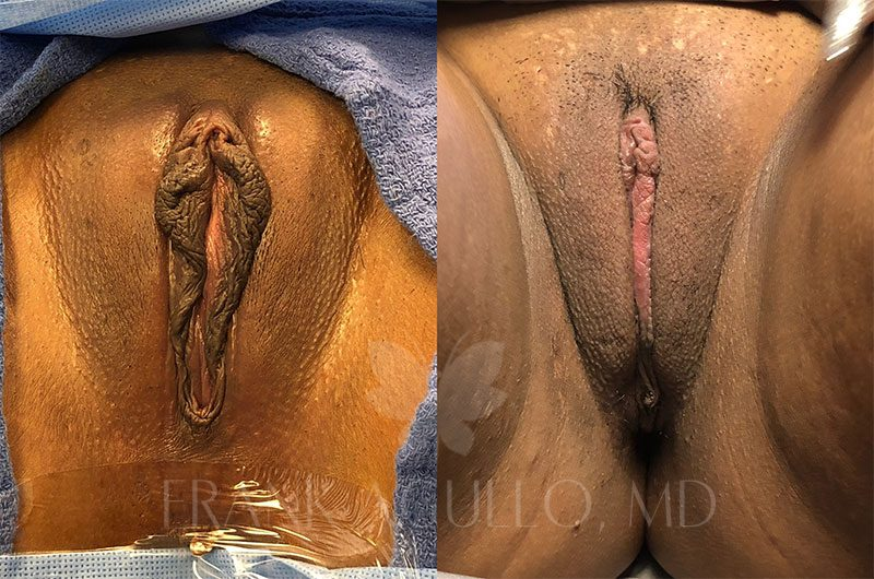 Labiaplasty Before and After 16
