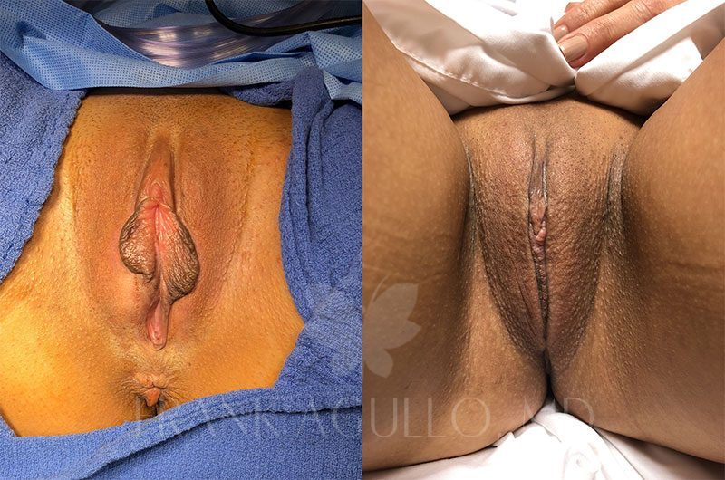 Labiaplasty Before and After 17