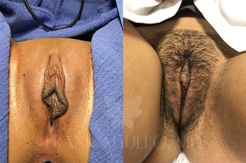 Labiaplasty Before and After 18
