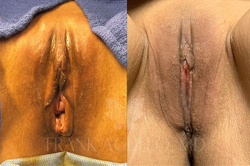 Labiaplasty Before and After 20