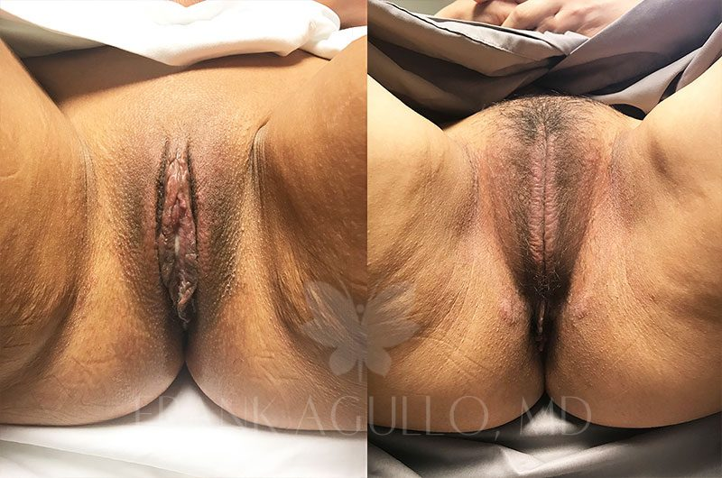 Labiaplasty Before and After 1