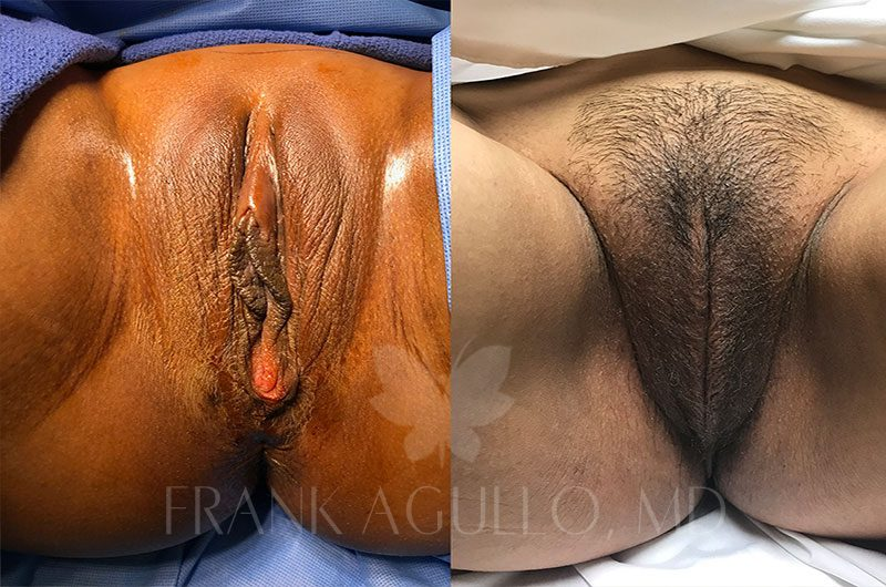 Labiaplasty Before and After 2