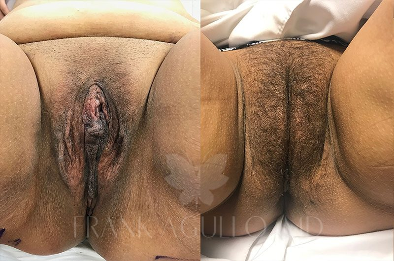 Labiaplasty Before and After 3