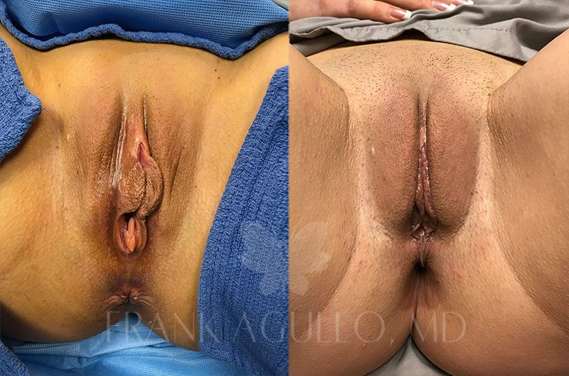 Labiaplasty Before and After 6