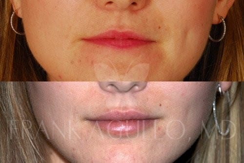 Lip Augmentation Before and After 3