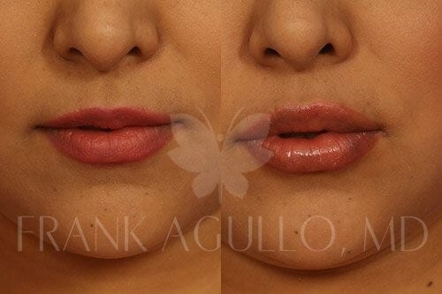 Lip Augmentation Before and After 4