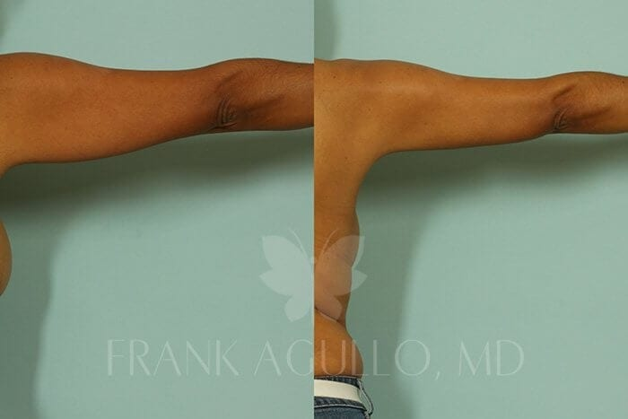 Liposuction Before and After 14