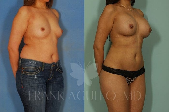 Liposuction Before and After 7
