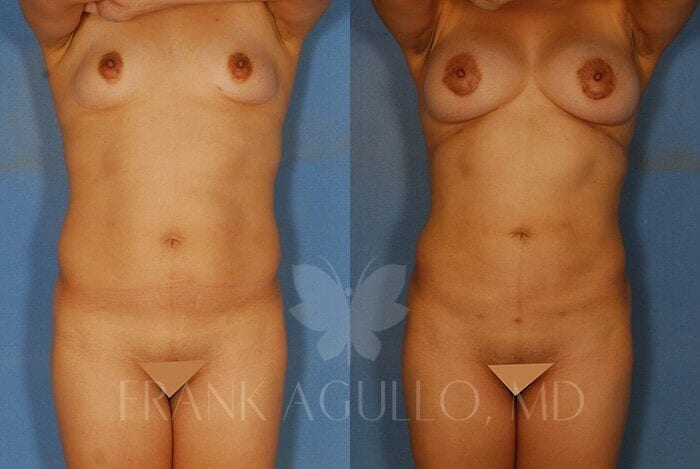 Liposuction Before and After 8