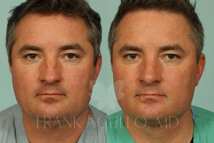 Liposuction Before and After 16