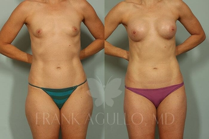 Liposuction Before and After 18