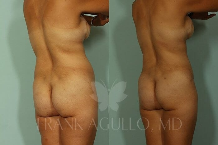 Liposuction Before and After 1