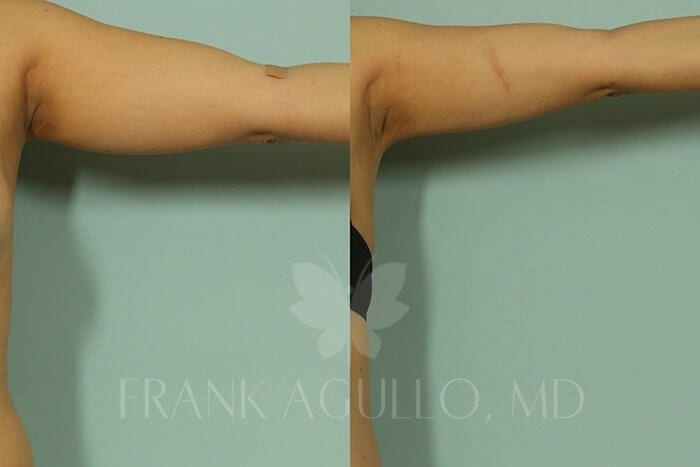 Liposuction Before and After 3
