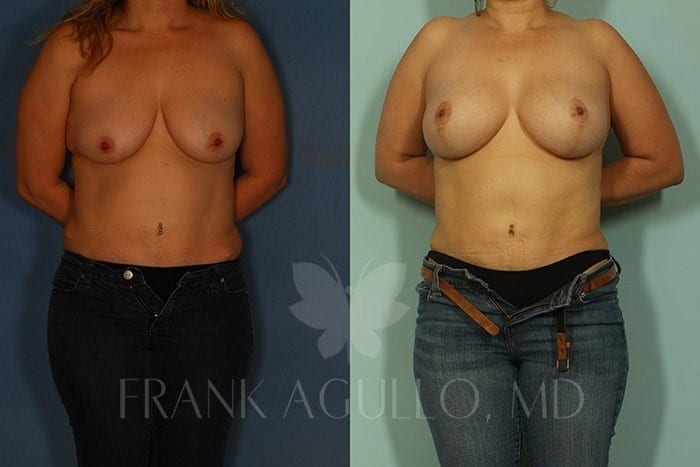 Breast Lift Before and After 20