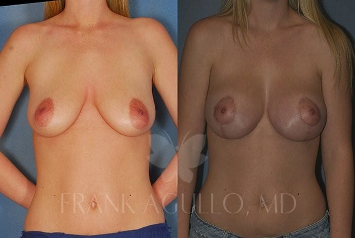 Breast Lift Before and After 10