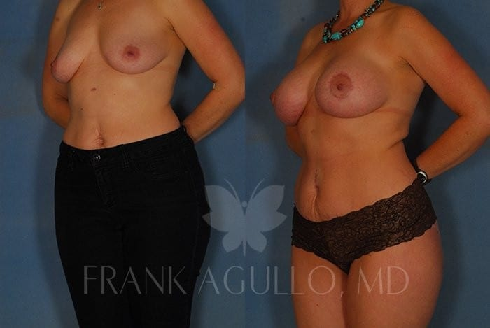 Breast Lift Before and After 13