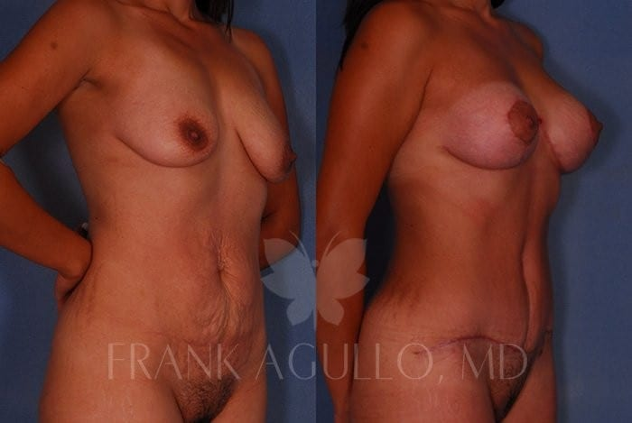 Breast Lift Before and After 14