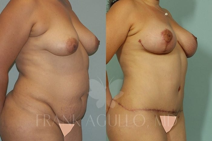 Breast Lift Before and After 2