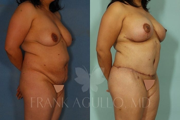 Breast Lift Before and After 6