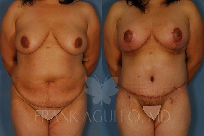 Breast Lift Before and After 7
