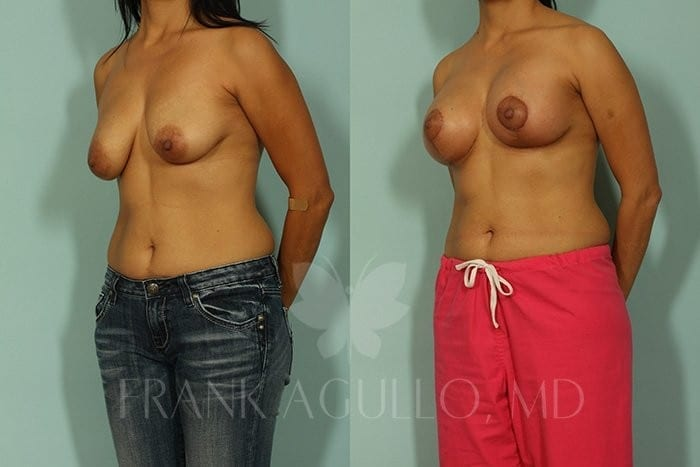 Breast Lift Before and After 8