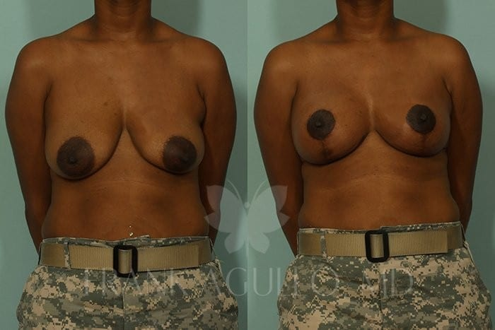 Breast Lift Before and After 9
