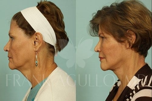 Neck Lift Before and After 1