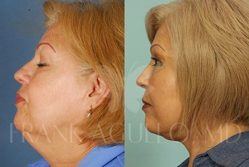 Neck Lift Before and After 2