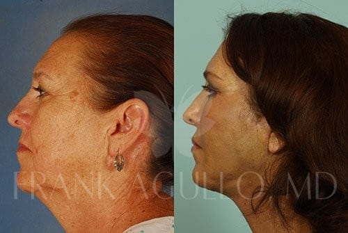 Neck Lift Before and After 3