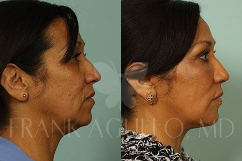 Neck Lift Before and After 4