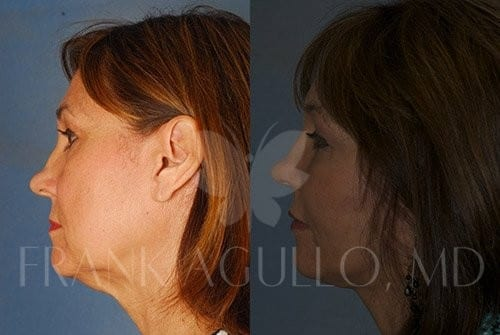 Neck Lift Before and After 5