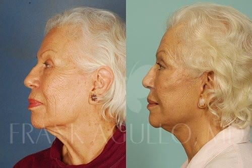 Neck Lift Before and After 6