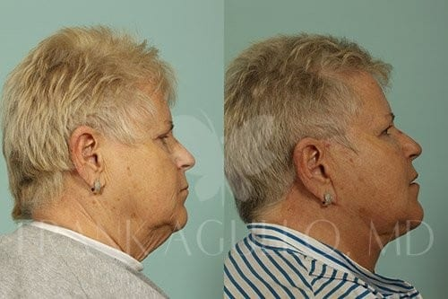 Neck Lift Before and After 7